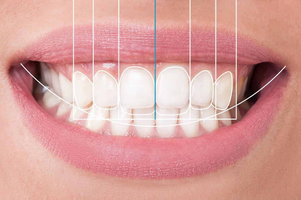 Estetika osmijeha i DSD, Centar dentalne medicine dr. Bilan, Zadar