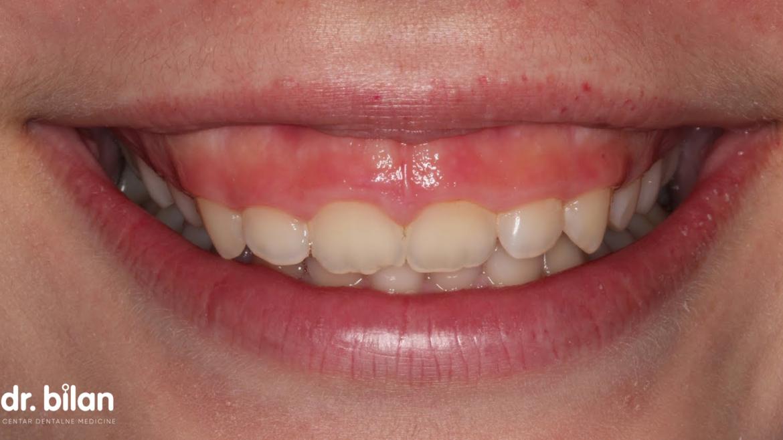 Gummy smile ili pretjerana vidljivost desni