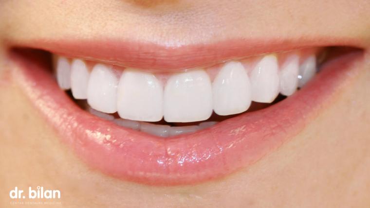 A kolika je trajnost ljuskica za zube?