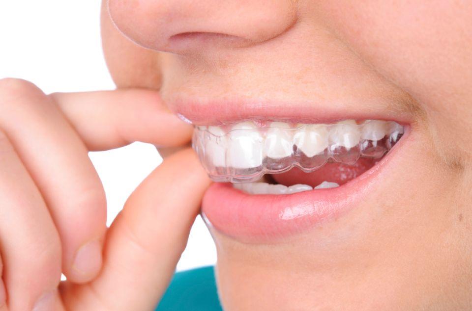 Bruksizam – škripanje i stiskanje zubi u snu