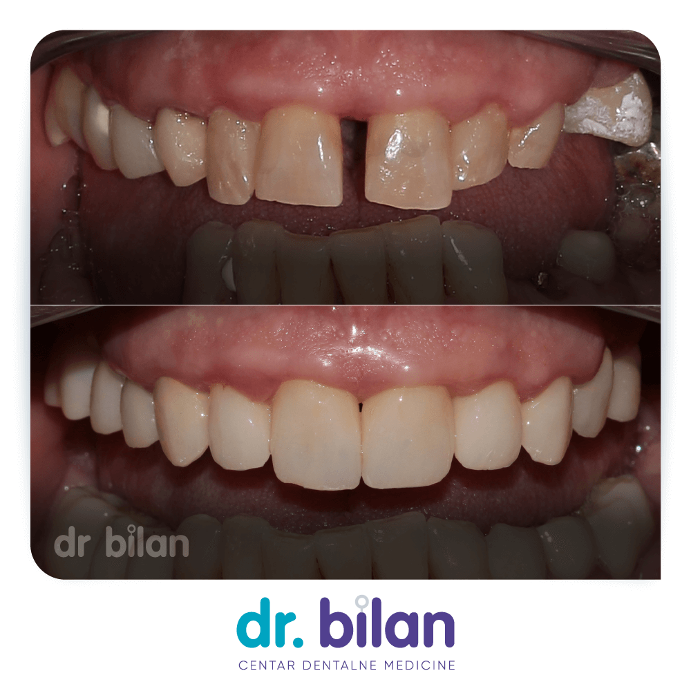 Zubni most, izgled prije i poslije, Centar dentalne medicine dr. Bilan, Zadar