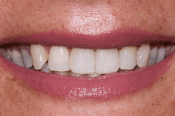 makeover gornja čeljust