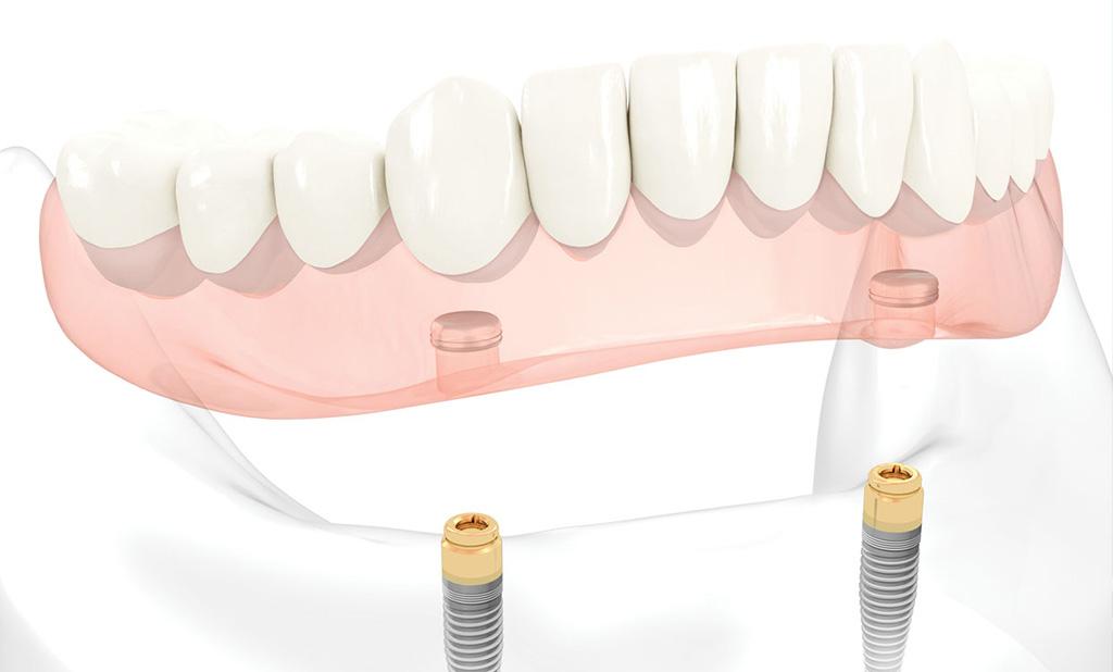 Vrste zubnih proteza – proteze na lokatorima