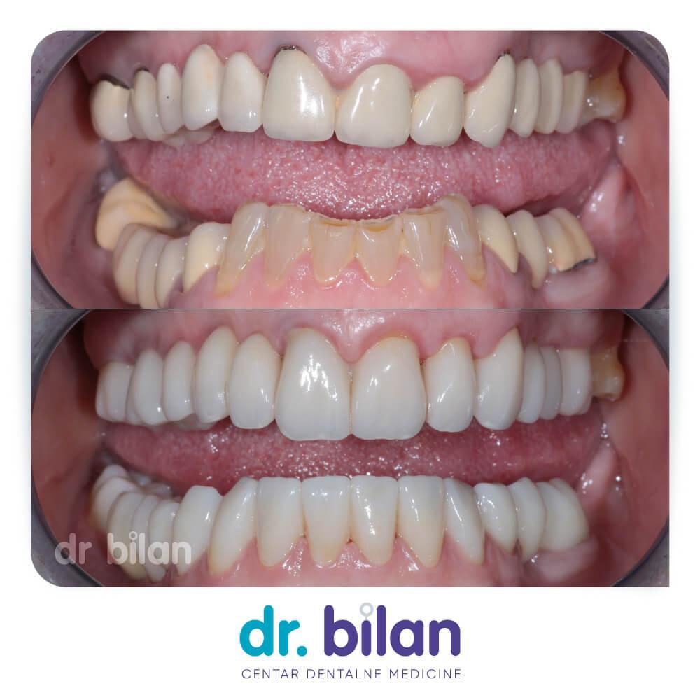 Rehabilitacija cirkonskim zubnim krunicama i mostovima