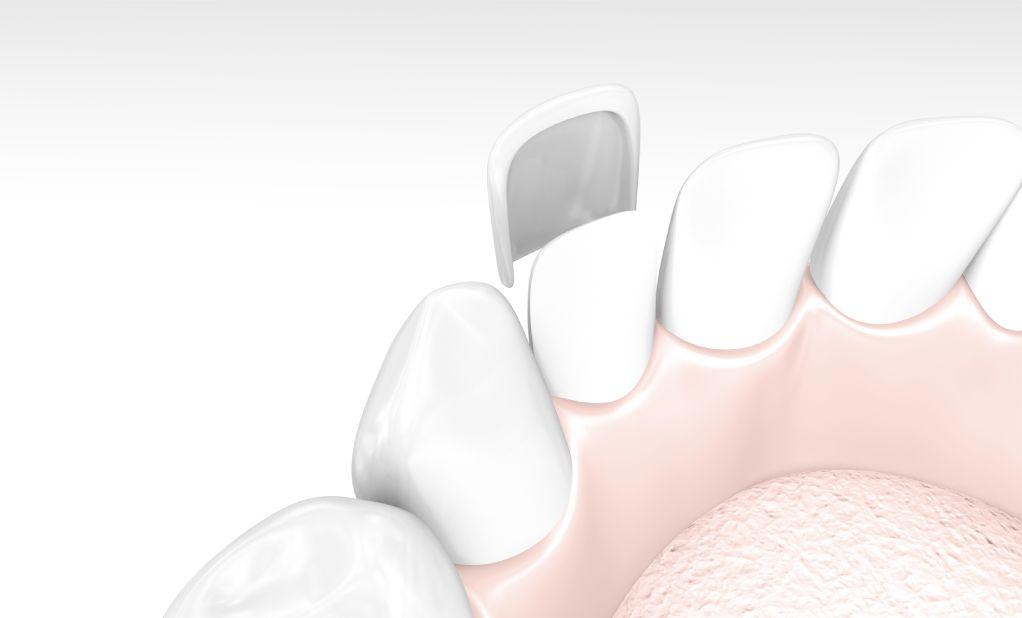 zubne ljuskice od porculana