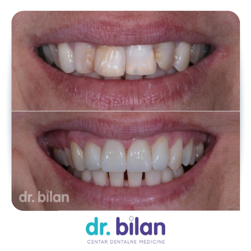 zubi oslabljeni velikim ispunima i liječenjem