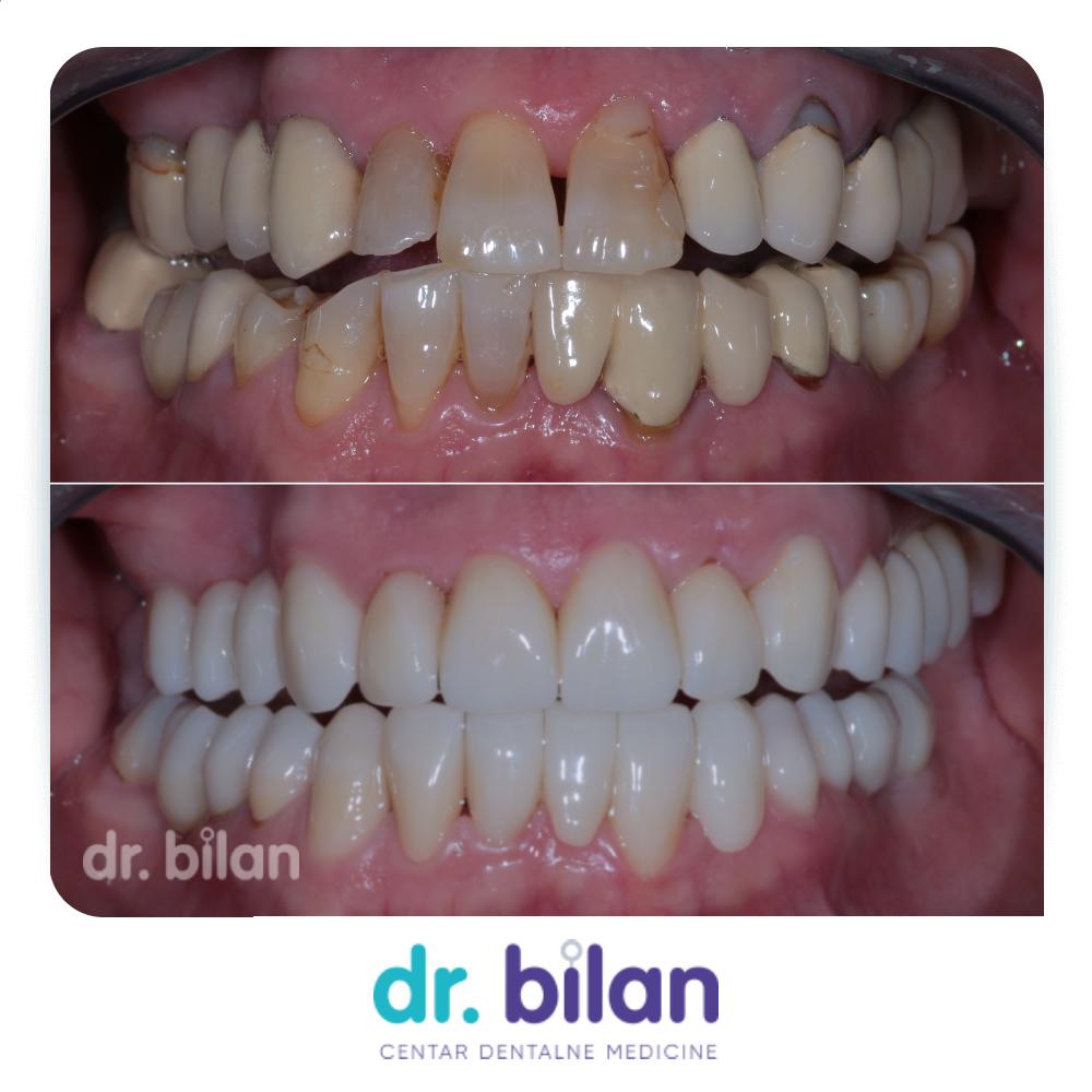 zubne krunice prije i poslije