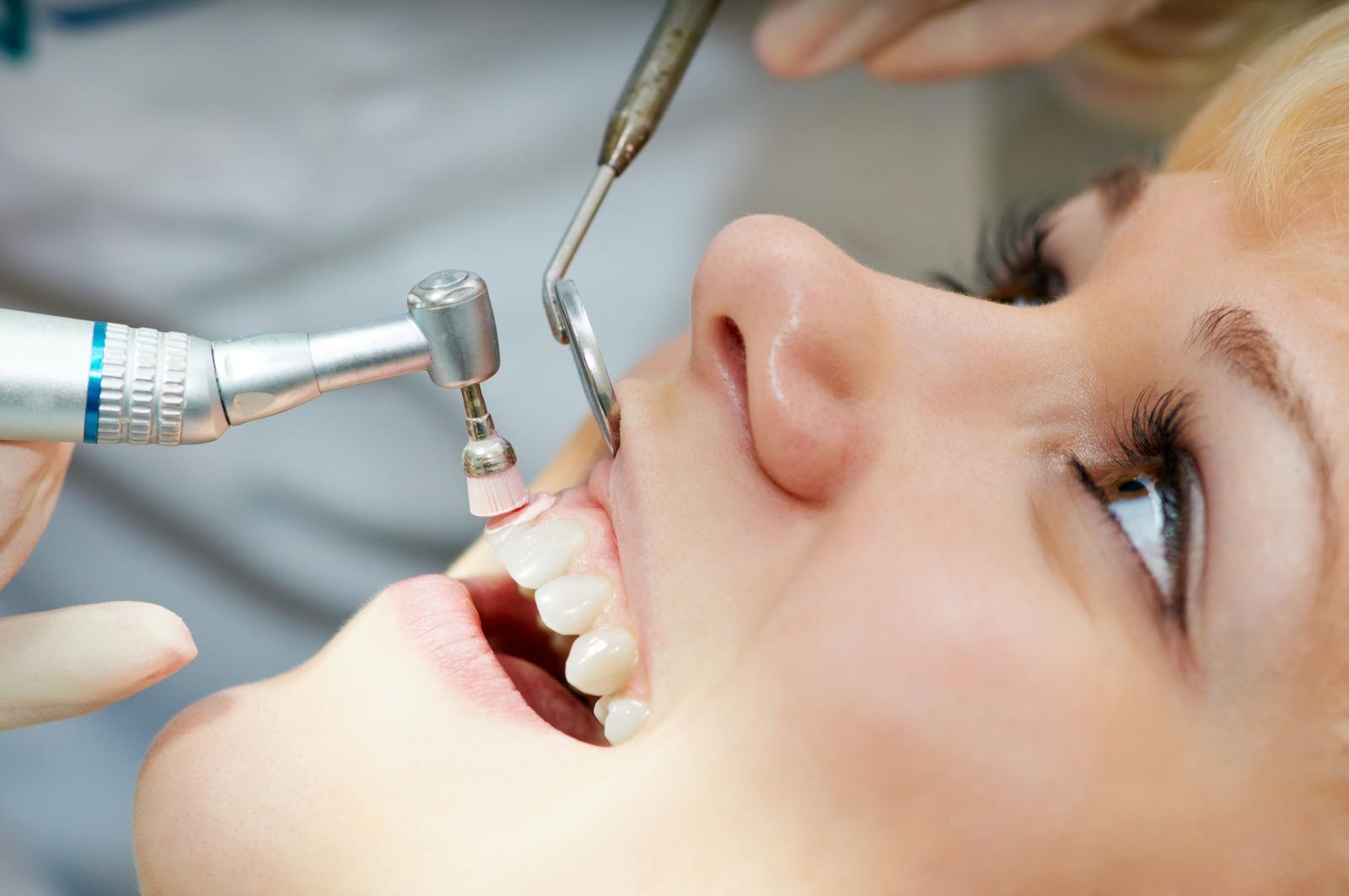 poliranje zubi, dr. Bilan