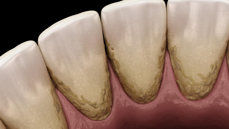 Čišćenje zubnog kamenca – važan čimbenik za oralno zdravlje