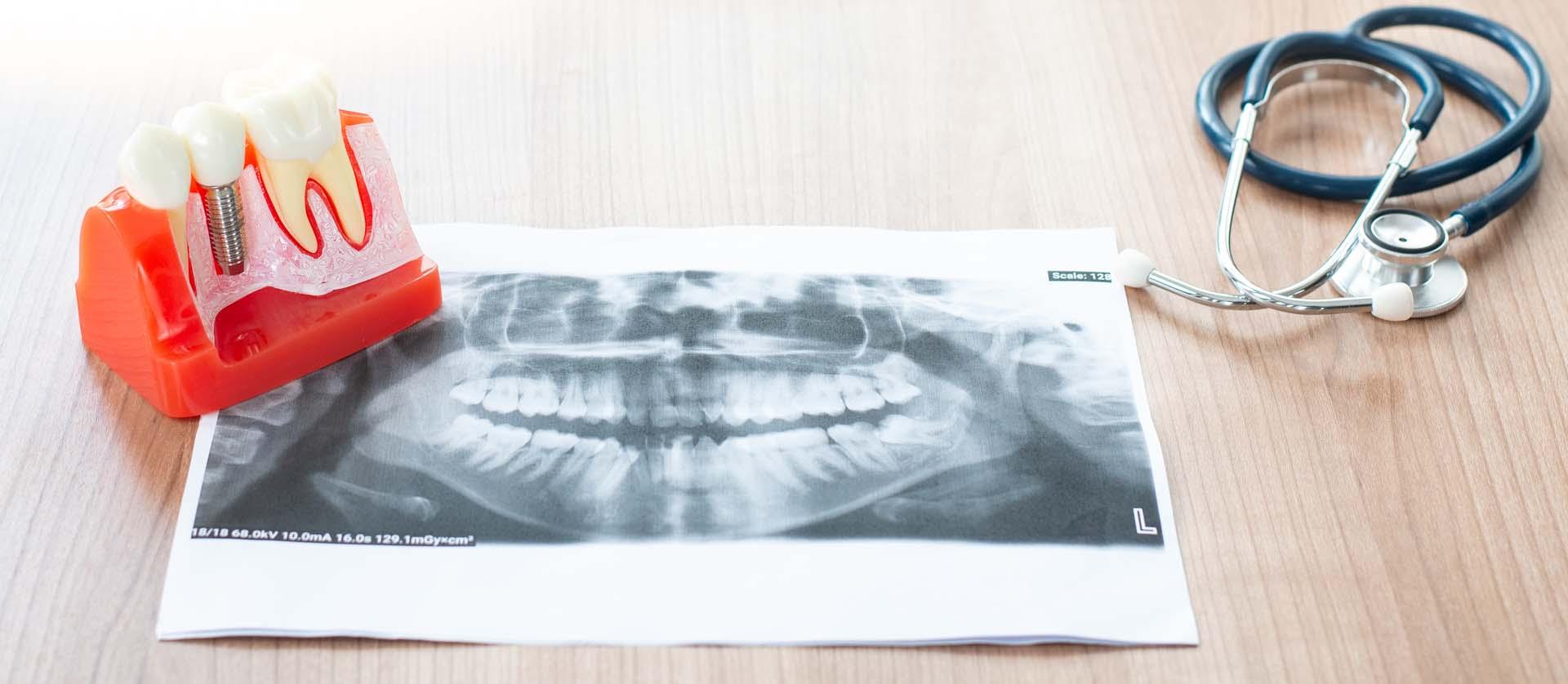 Odbacivanje zubnih implantata - razlozi i protokol