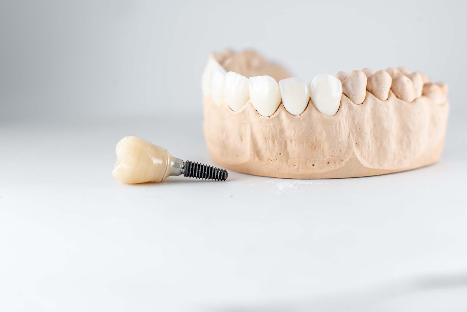 Odbacivanje zubnih implantata- zašto se to događa i što napraviti u tom slučaju? - dr. Bilan